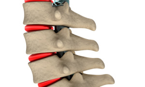 Our personal injury attorneys in Tampa can help with Lumbar herniated disc due to the negligence of another